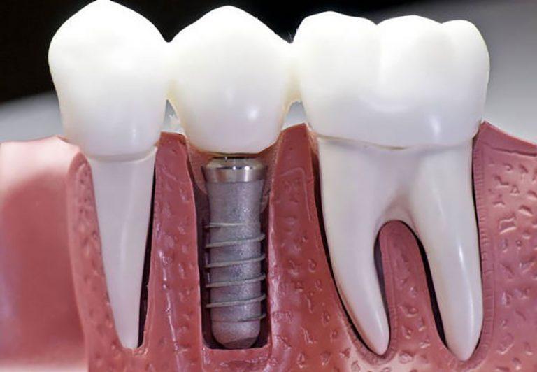 ایمپلنت دندان هرآنچه که لازم است بدانید