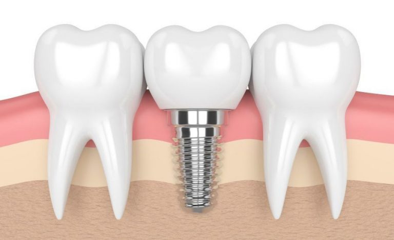 مراحل کاشت ایمپلنت دندان با ایمپلنت کره ای F&B